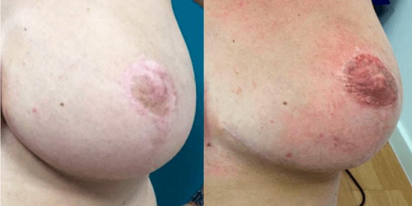 tatuajepezonaureola1
